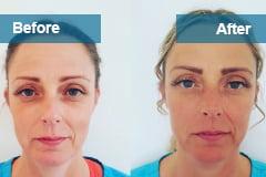 Botox | Lip Fillers Southsea | Anti-wrinkle Treatment Portsmouth